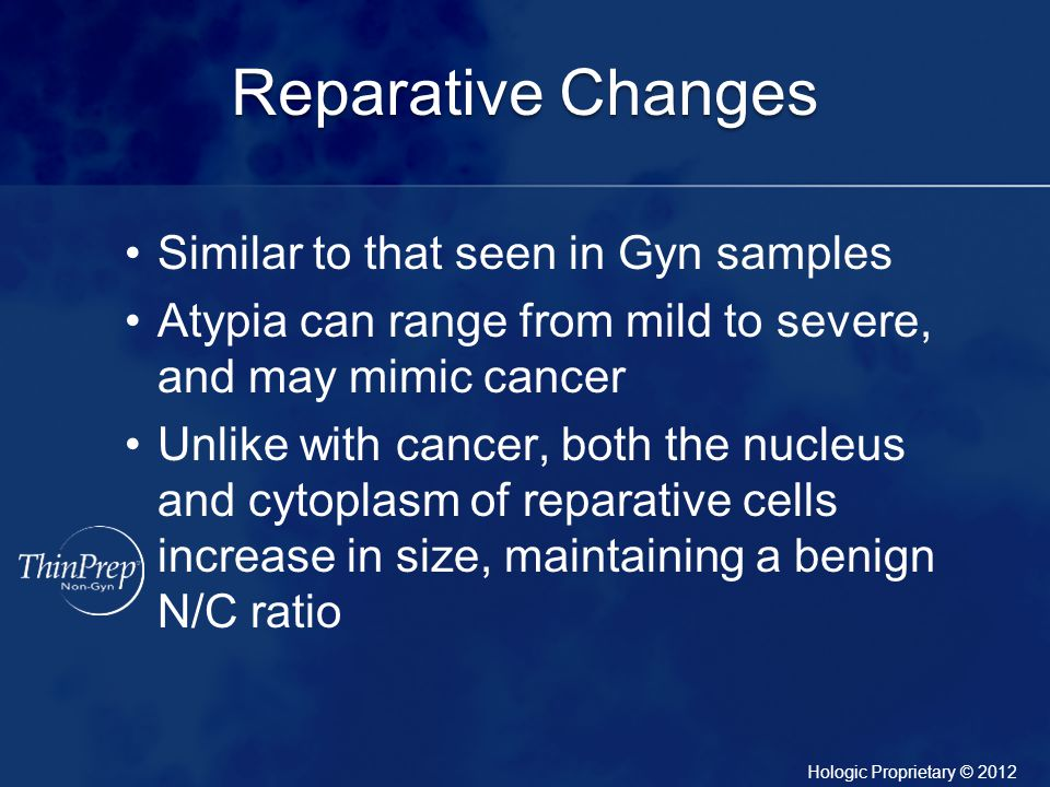 Reparative Changes Similar to that seen in Gyn samples