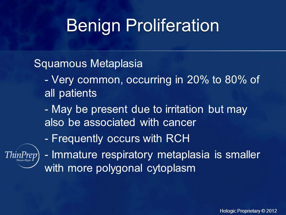 Benign Proliferation