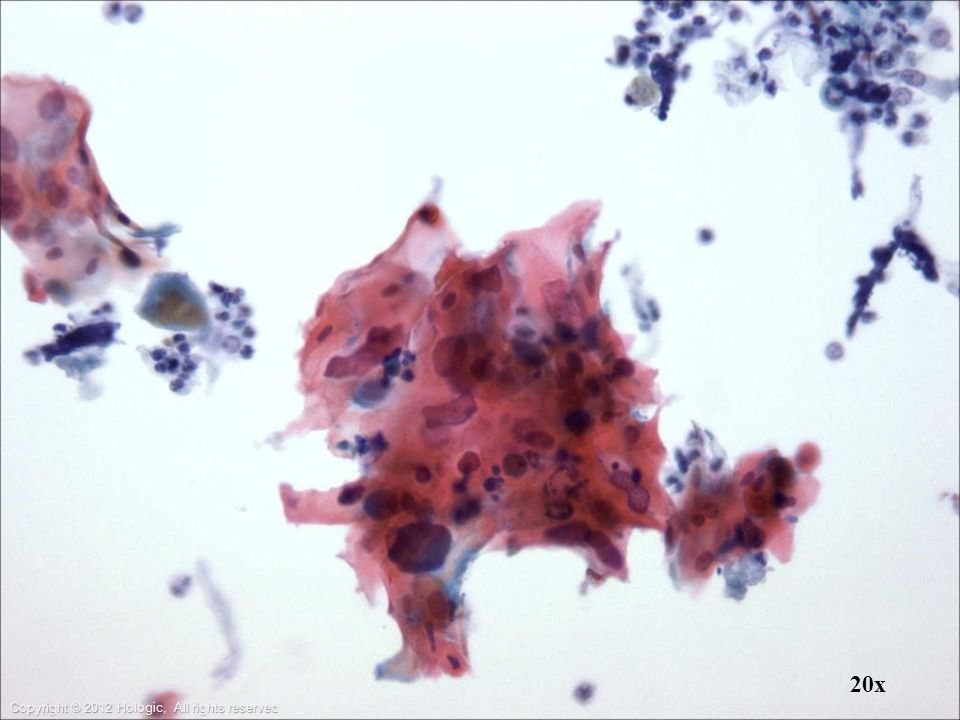 Bronchial wash: group of atypical squamous cells suggestive of SCCA.