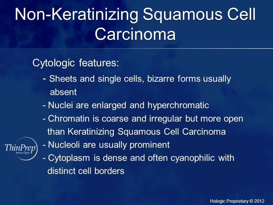 Non-Keratinizing Squamous Cell Carcinoma