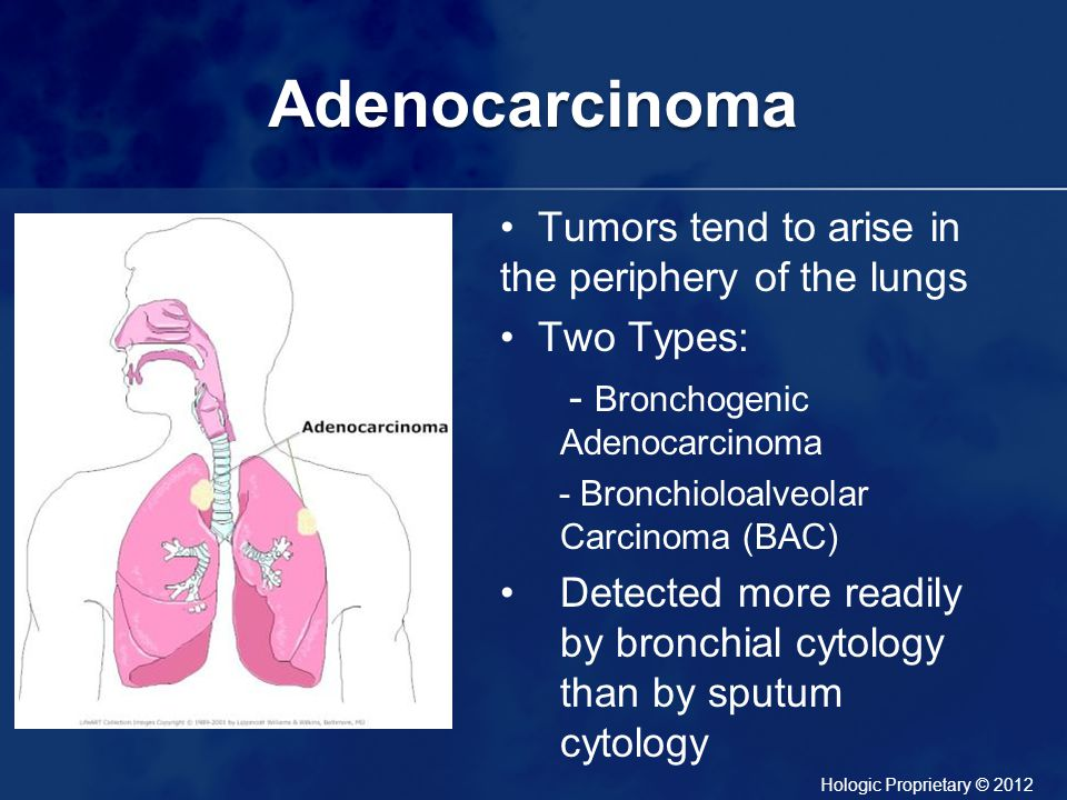 Adenocarcinoma Tumors tend to arise in the periphery of the lungs