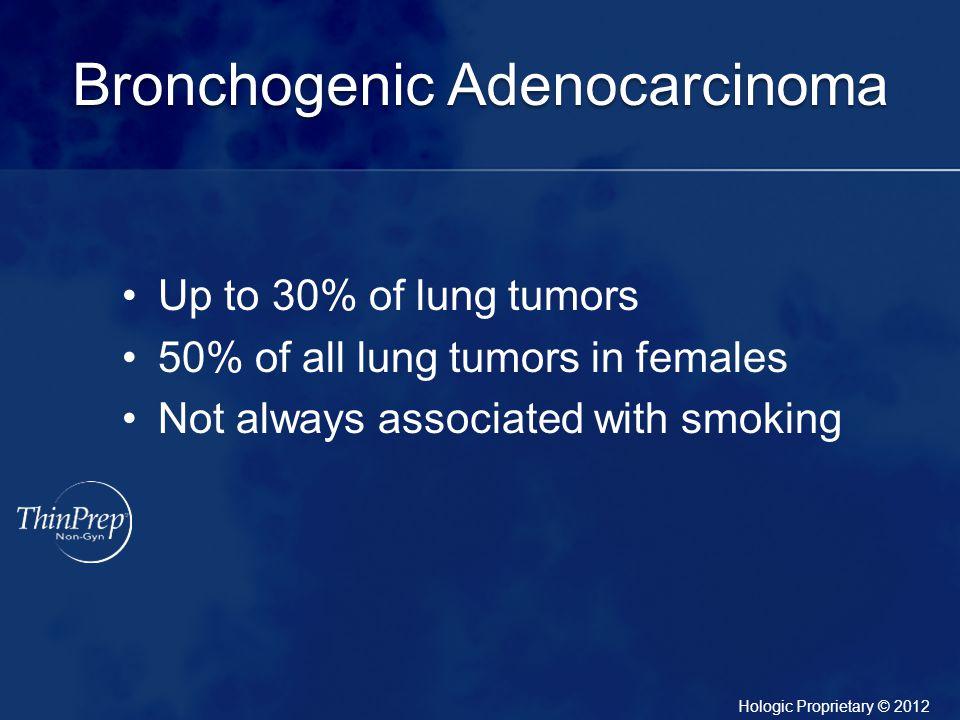 Bronchogenic Adenocarcinoma