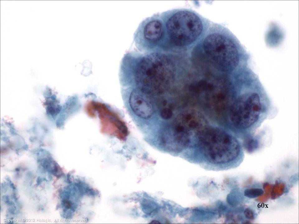 Bronchoalveolar Lavage: The nuclei of this poorly-differentiated adenocarcinoma are variable in shape and have coarse clumped chromatin. Blood and necrosis may be present in the background.