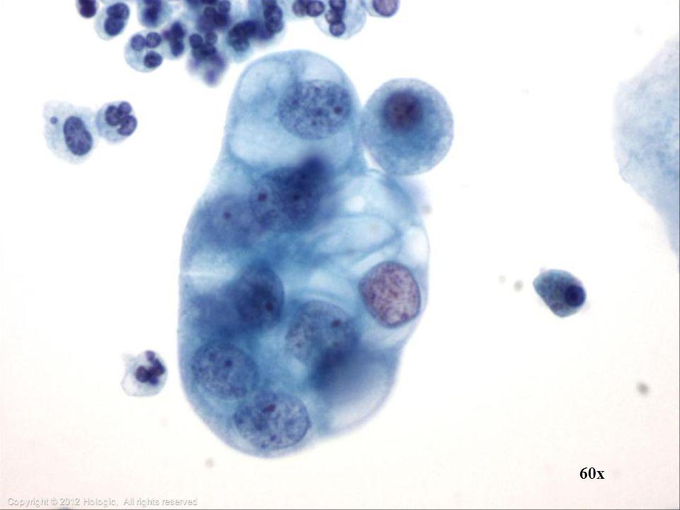 Sputum: cytoplasm of bronchogenic adenocarcinoma may contain abundant vacuoles.
