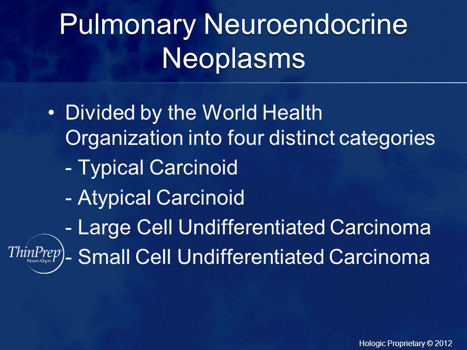 Pulmonary Neuroendocrine Neoplasms