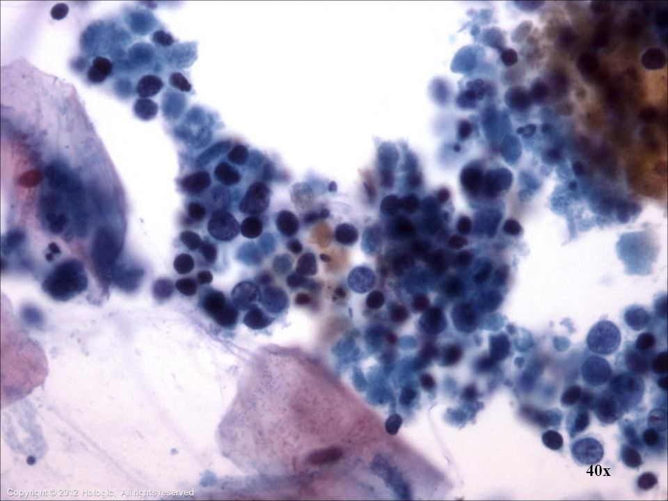 Sputum: Nuclear staining ranges from dark to pale, reflecting pyknosis and cell necrosis respectfully.