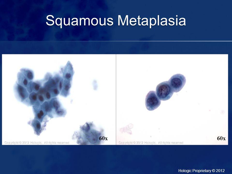 Squamous Metaplasia 60x 60x
