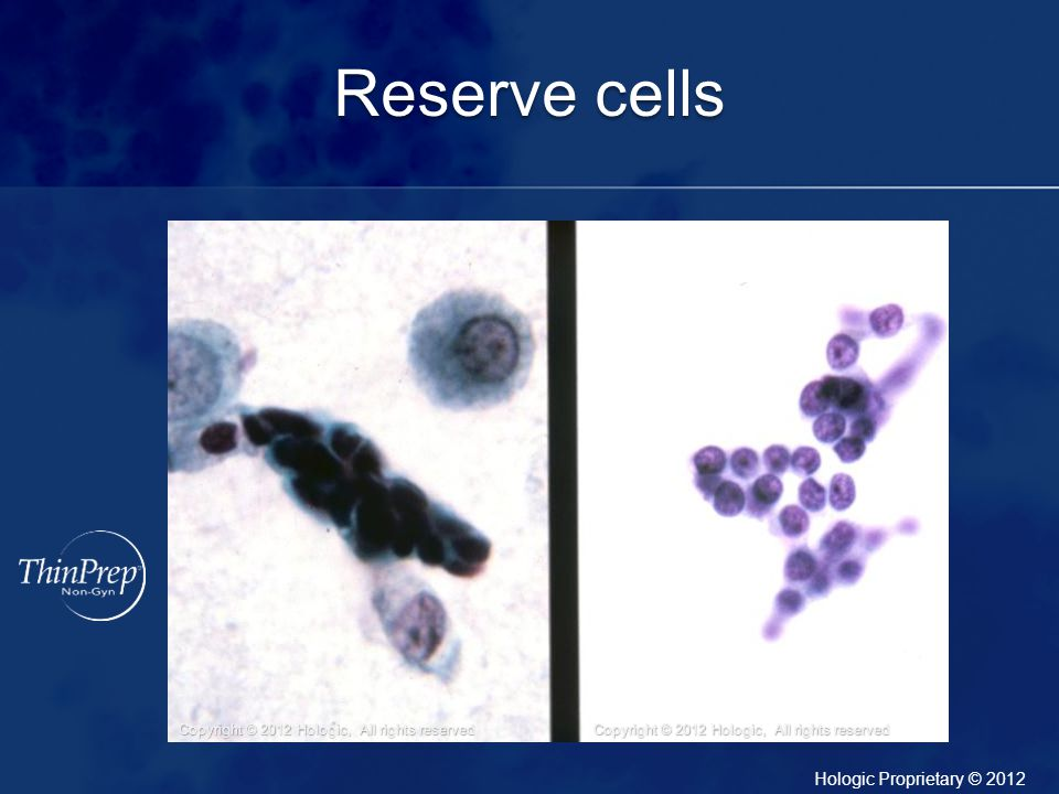 Reserve cells Tight cohesive group of reserve cells.