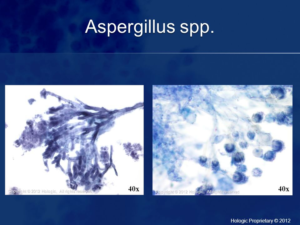Aspergillus spp. Left Image-Bronchial Wash: Characterized by 45 degree angle branching. Right Image- BAL: Fruiting heads may also be identified.