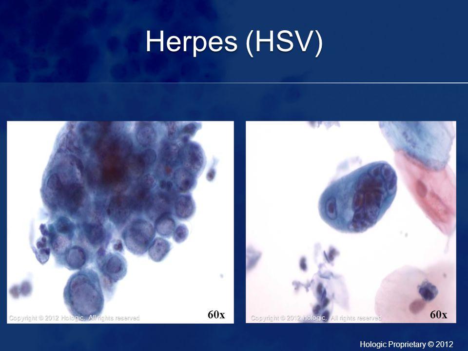 Herpes (HSV)