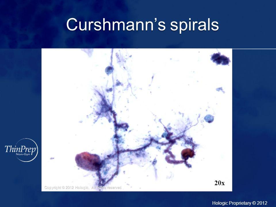 Curshmann's spirals