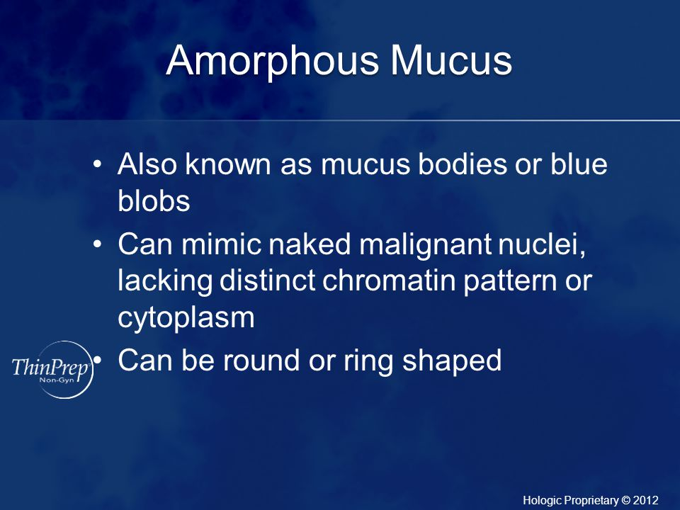 Amorphous Mucus Also known as mucus bodies or blue blobs