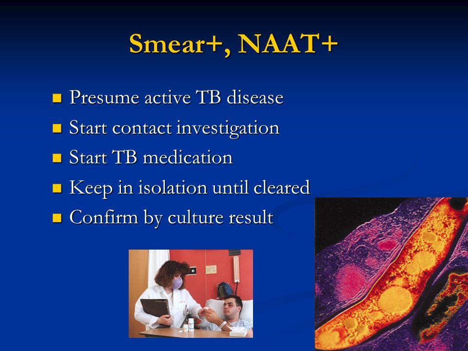 Smear+, NAAT+ Presume active TB disease Start contact investigation