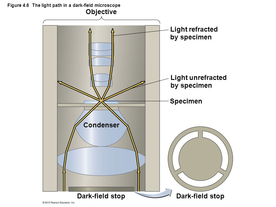 Figure 4.6 The light path in a dark-field microscope