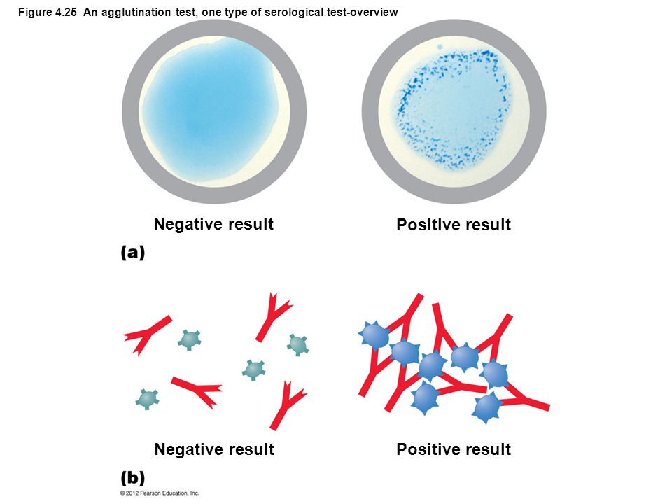 Negative result Positive result Negative result Positive result
