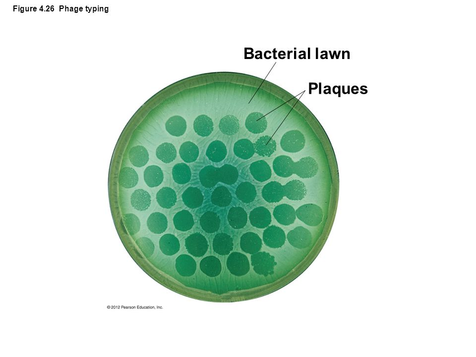 Figure 4.26 Phage typing Bacterial lawn Plaques 52