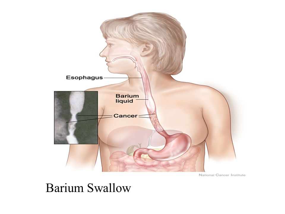 Barium Swallow