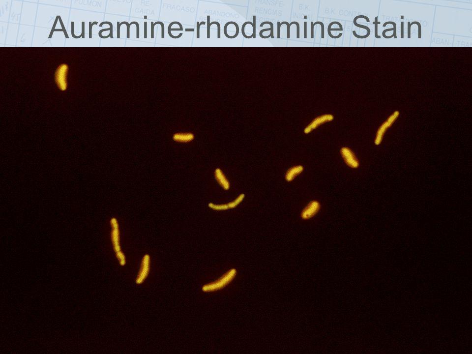 Auramine-rhodamine Stain
