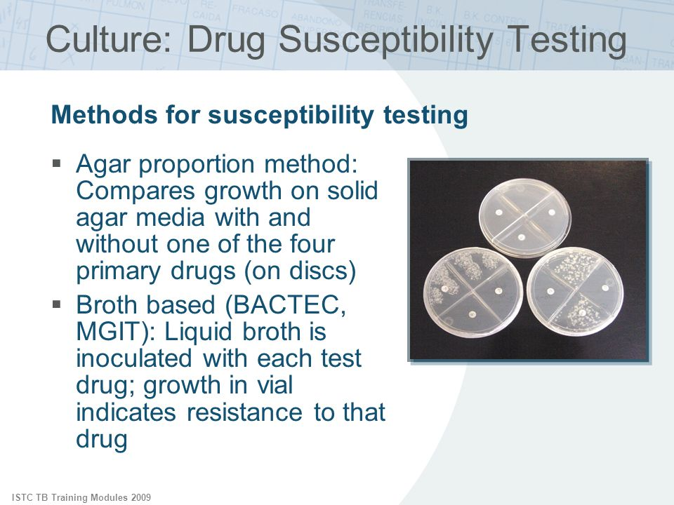 Culture: Drug Susceptibility Testing
