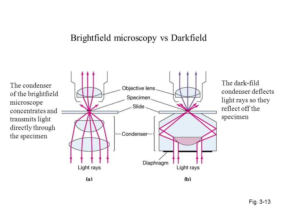 Brightfield microscopy vs Darkfield