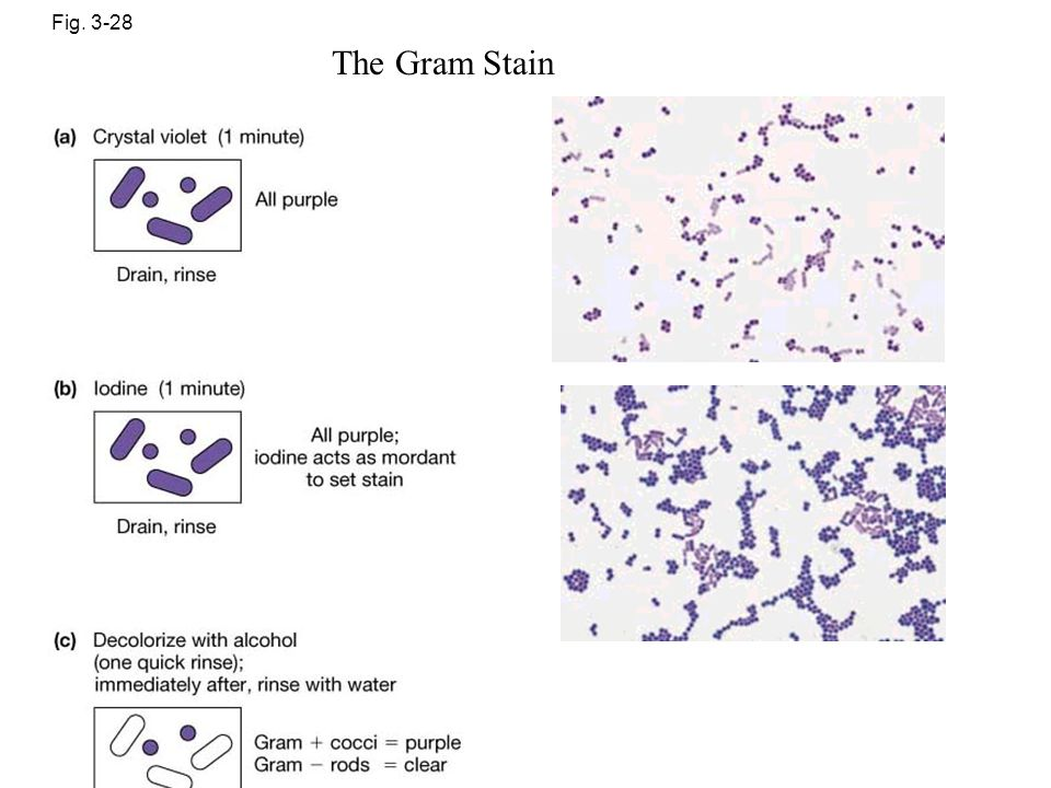 Fig. 3-28 The Gram Stain