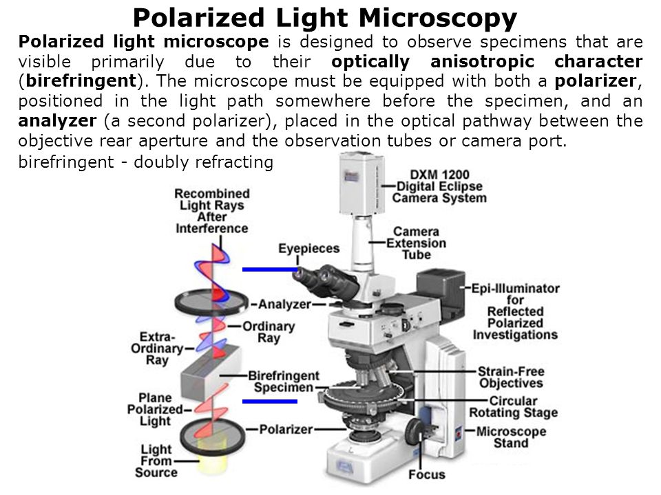 Polarized Light Microscopy