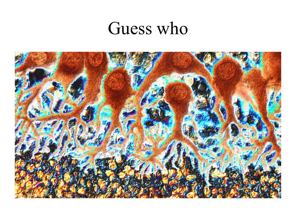 Guess who Mouse Purkinje cells