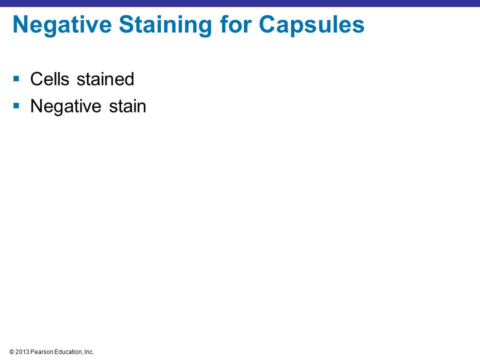 Negative Staining for Capsules