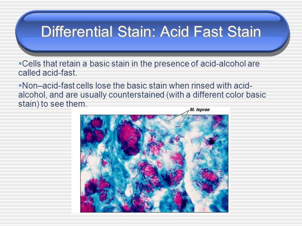 Differential Stain: Acid Fast Stain