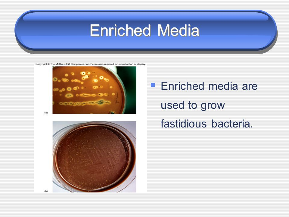 Enriched Media Enriched media are used to grow fastidious bacteria.