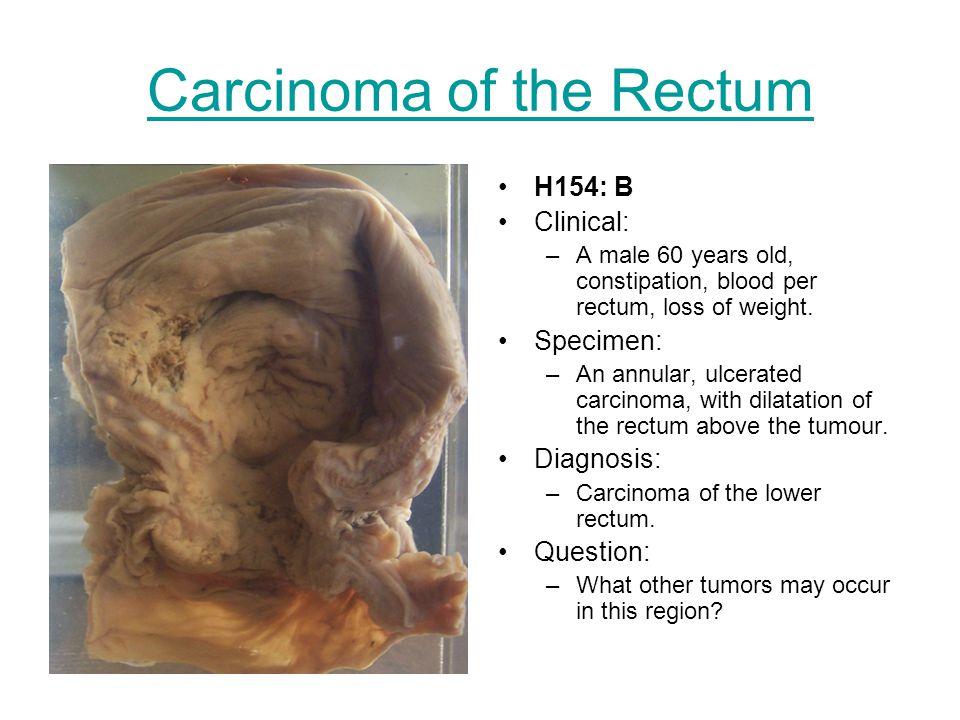 Carcinoma of the Rectum