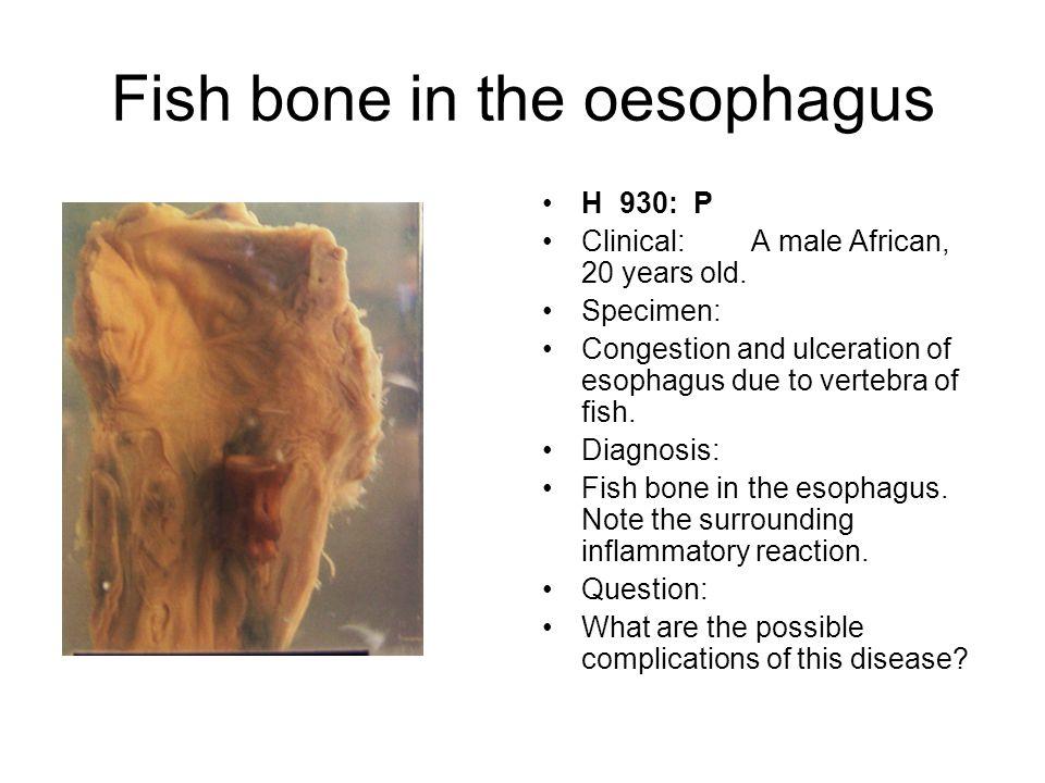 Fish bone in the oesophagus
