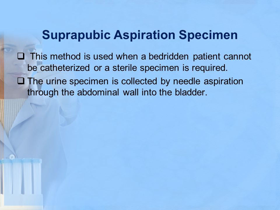 Suprapubic Aspiration Specimen