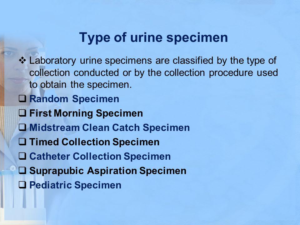 Type of urine specimen