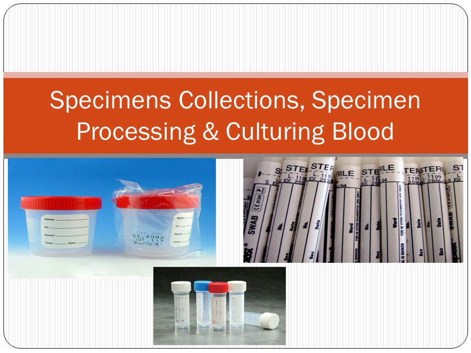 Specimens Collections, Specimen Processing & Culturing Blood