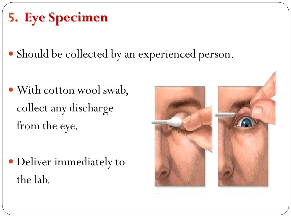 Eye Specimen Should be collected by an experienced person.