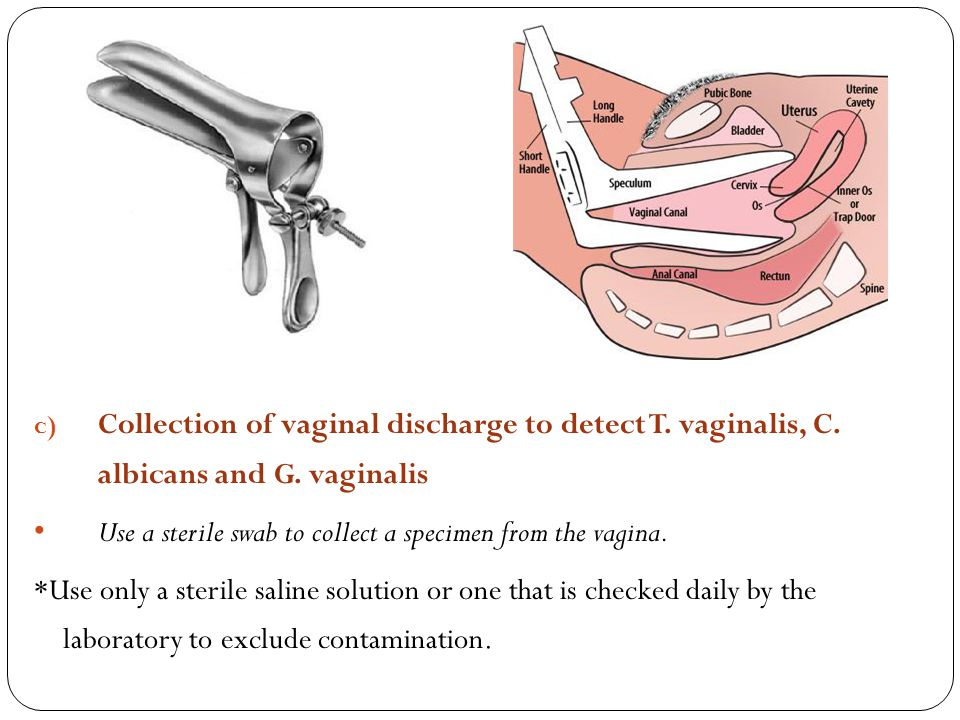 Collection of vaginal discharge to detect T. vaginalis, C