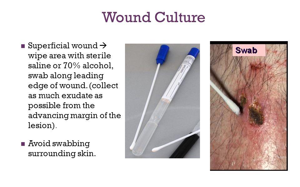Wound Culture
