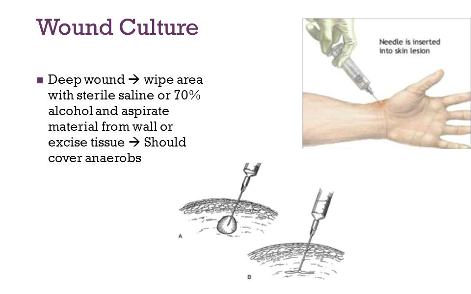 Wound Culture Deep wound  wipe area with sterile saline or 70% alcohol and aspirate material from wall or excise tissue  Should cover anaerobs.