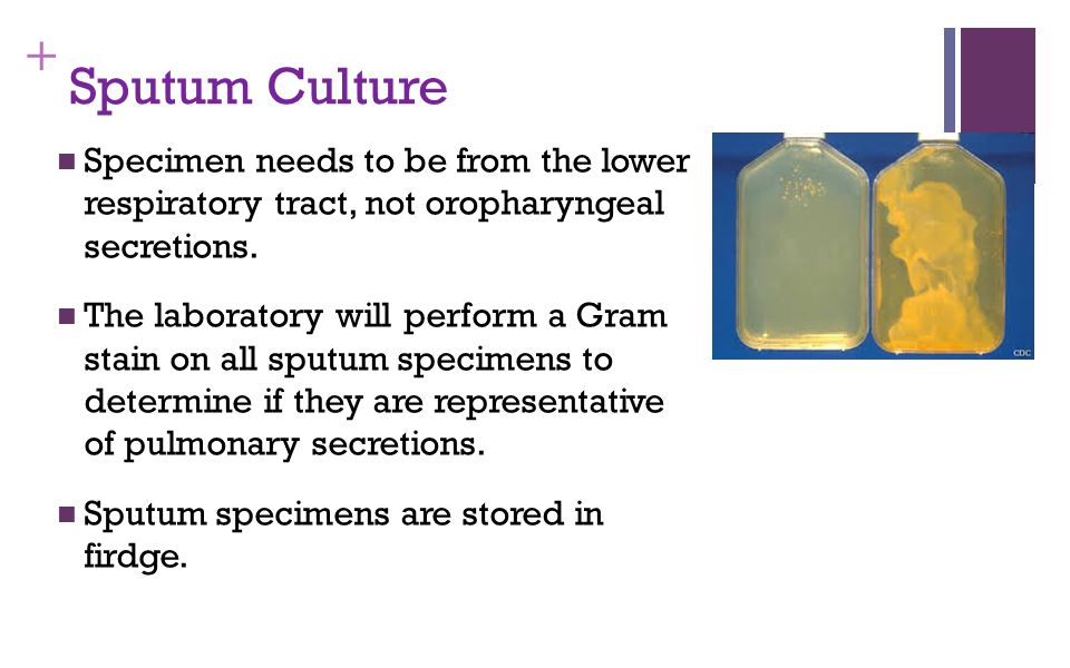 Sputum Culture Specimen needs to be from the lower respiratory tract, not oropharyngeal secretions.