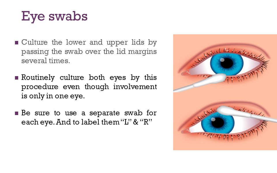 Eye swabs Culture the lower and upper lids by passing the swab over the lid margins several times.