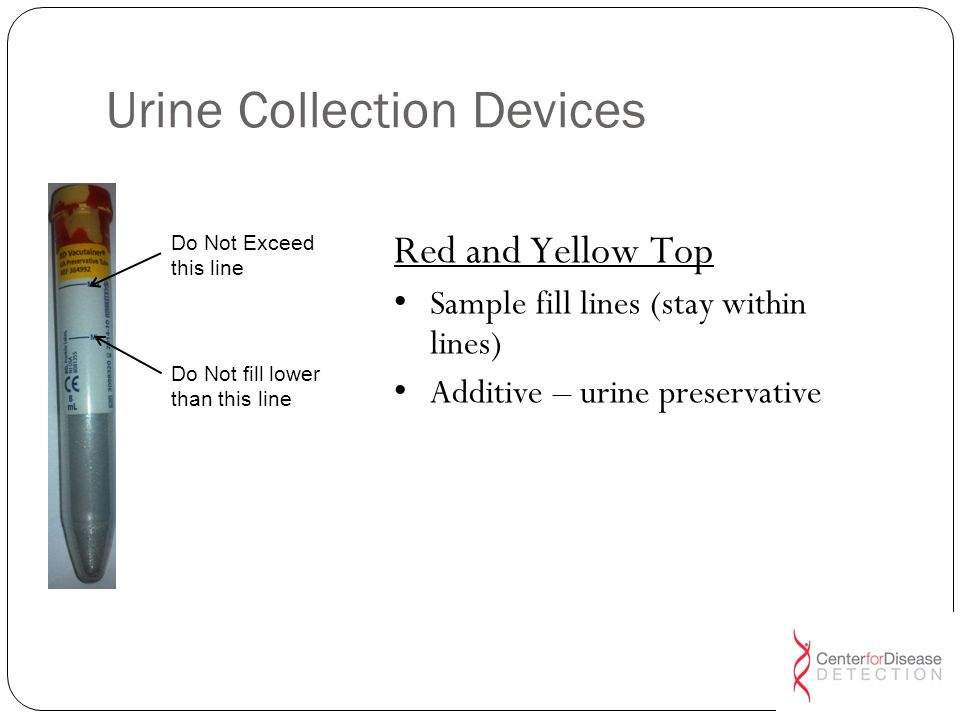 Urine Collection Devices