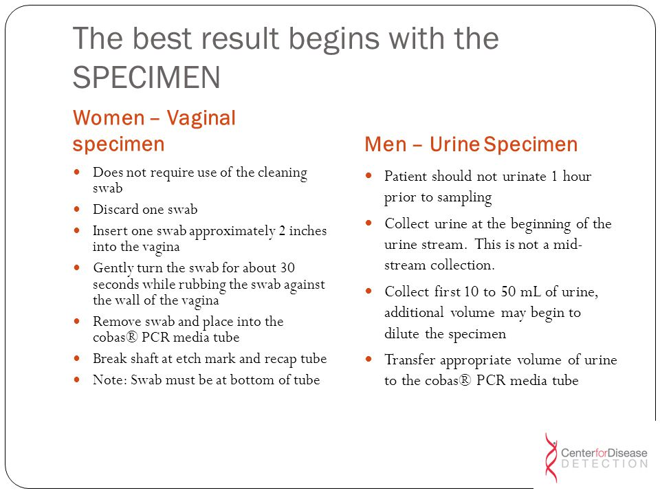 The best result begins with the SPECIMEN
