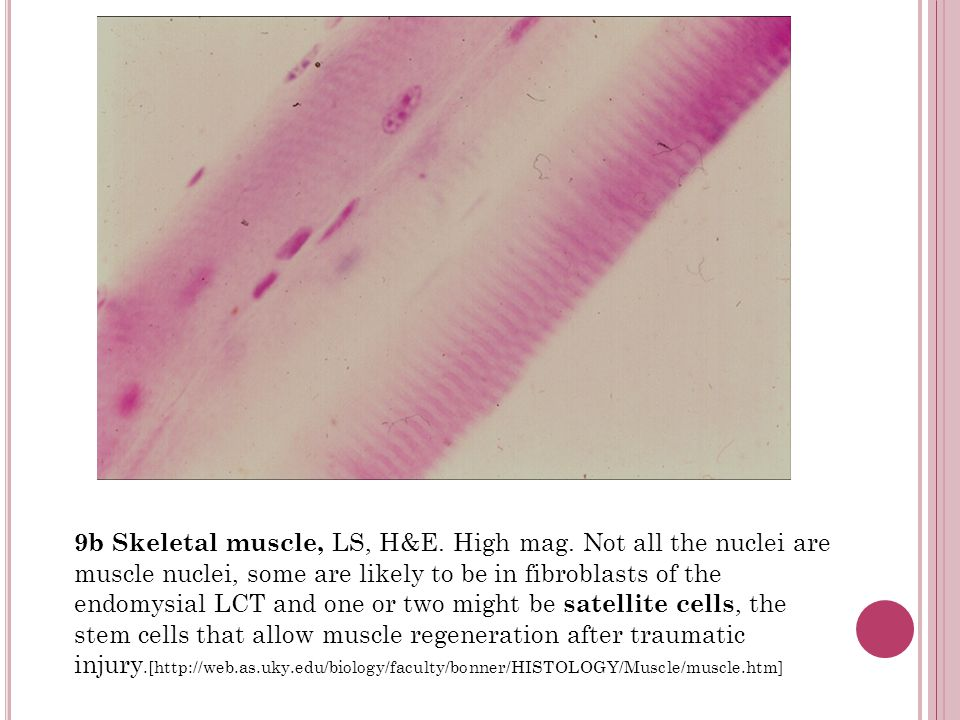 9b Skeletal muscle, LS, H&E. High mag