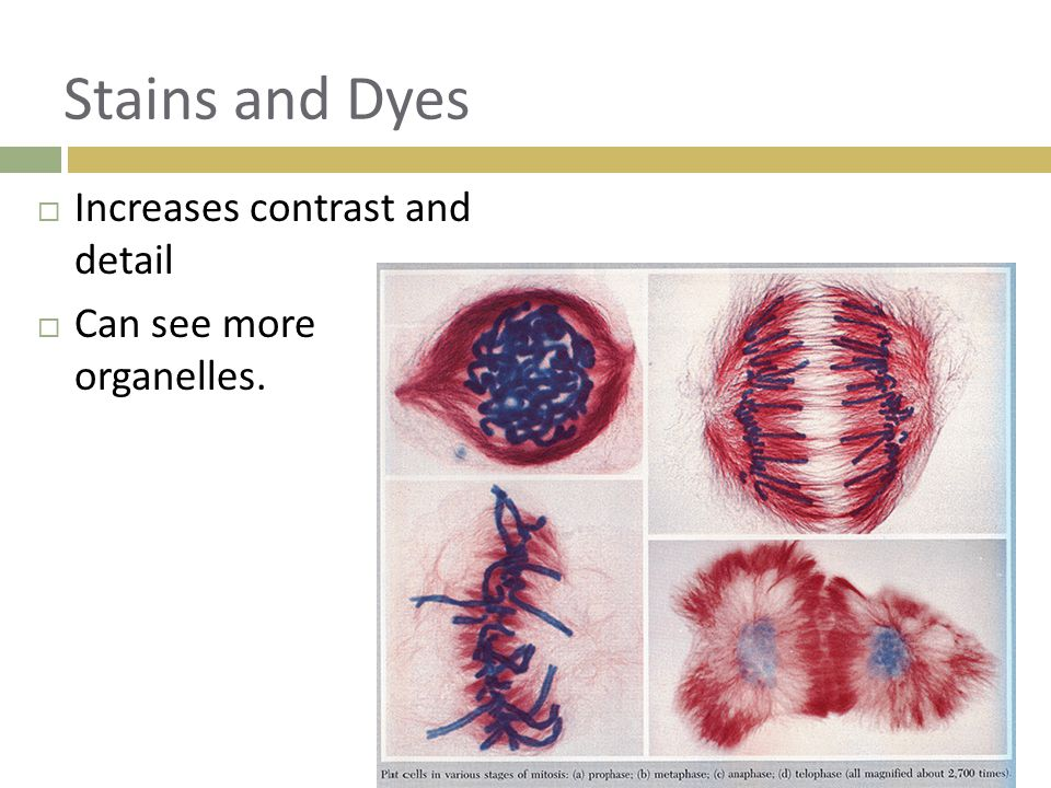 Stains and Dyes Increases contrast and detail Can see more organelles.