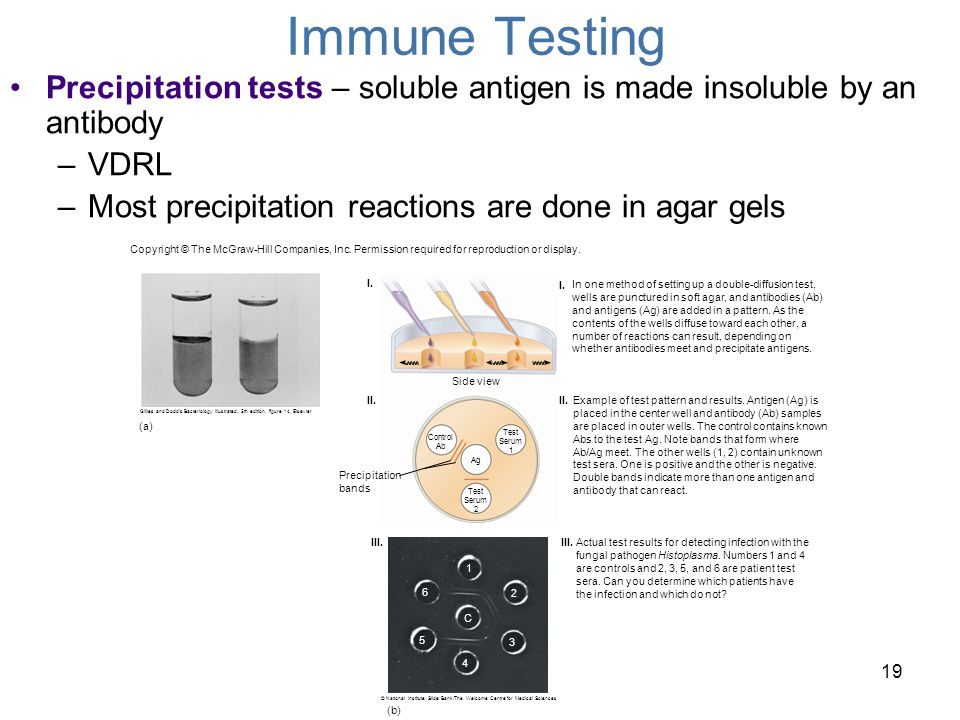 Immune Testing Precipitation tests – soluble antigen is made insoluble by an antibody. VDRL. Most precipitation reactions are done in agar gels.