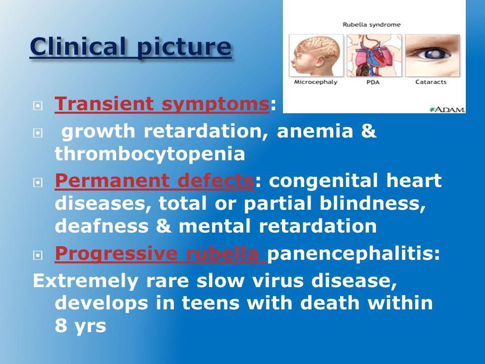 Clinical picture Transient symptoms: