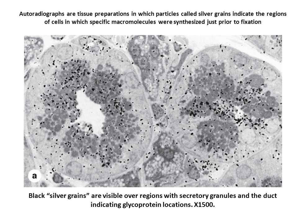 Autoradiographs are tissue preparations in which particles called silver grains indicate the regions of cells in which specific macromolecules were synthesized just prior to fixation