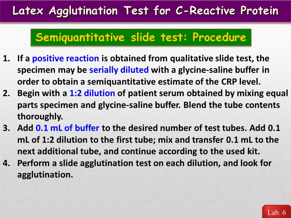 Latex Agglutination Test for C-Reactive Protein