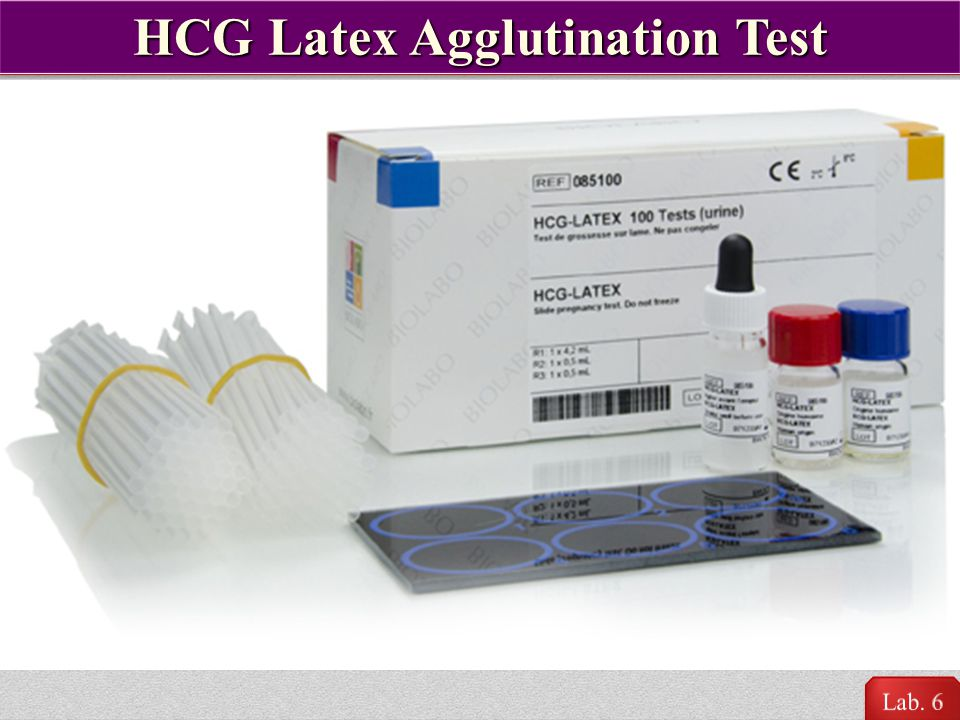 HCG Latex Agglutination Test